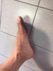 ムエタイで足の裏の皮がむけた